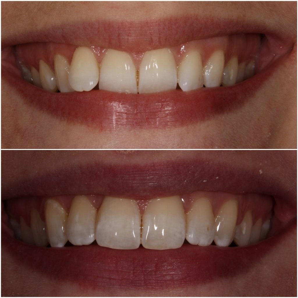 Before & After High Speed Braces