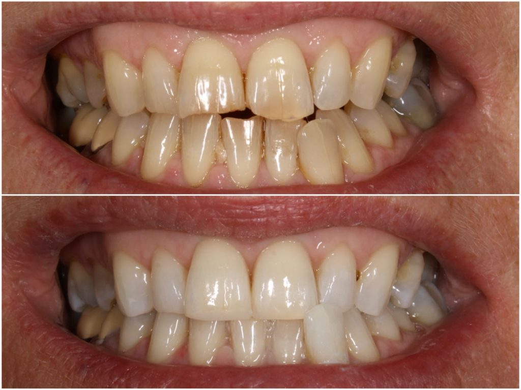Before & After Bonding & Whitening